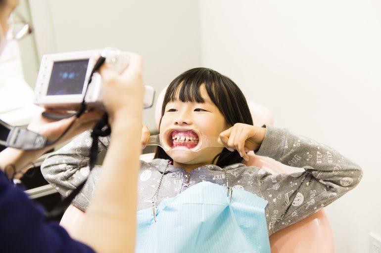 歯並びの問題が及ぼす影響